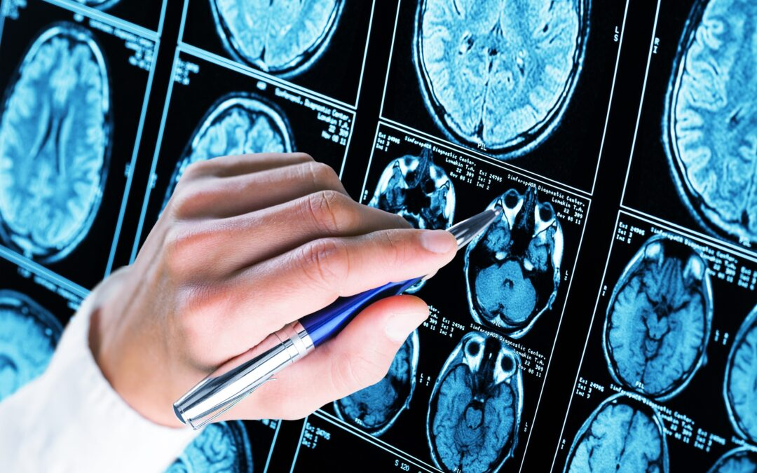 """Comments on ICER's May 5 Draft Evidence Report, """"Aducanumab for Alzheimer's Disease: Effectiveness and Value"""""""