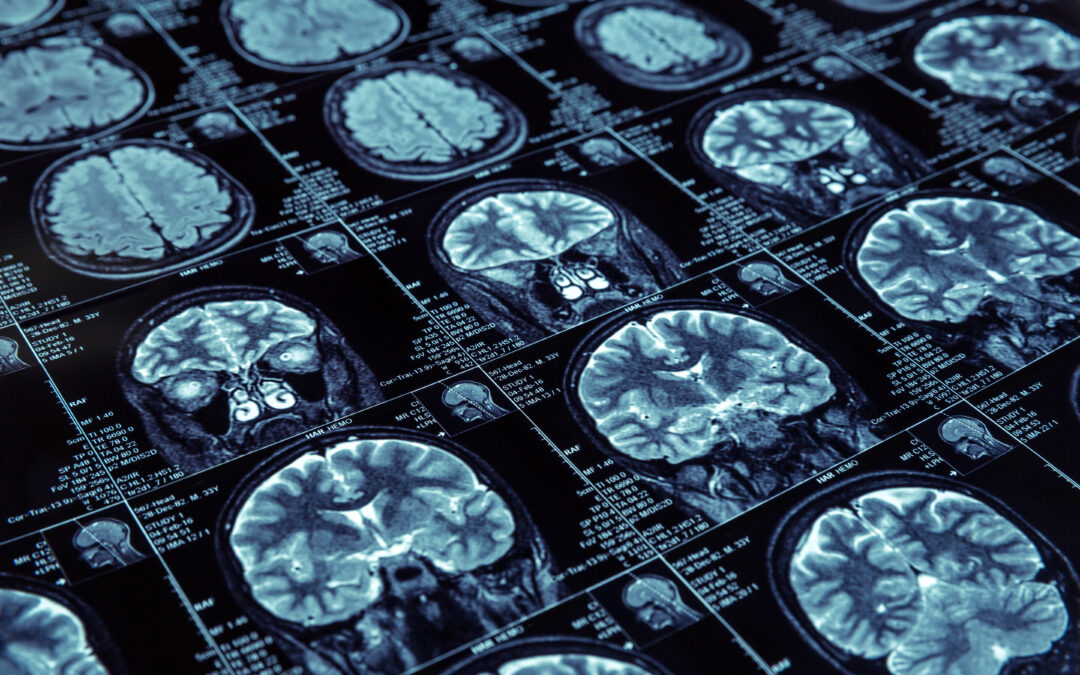 LAST WORD: ICER's Final Evidence Report on new Alzheimer's treatment