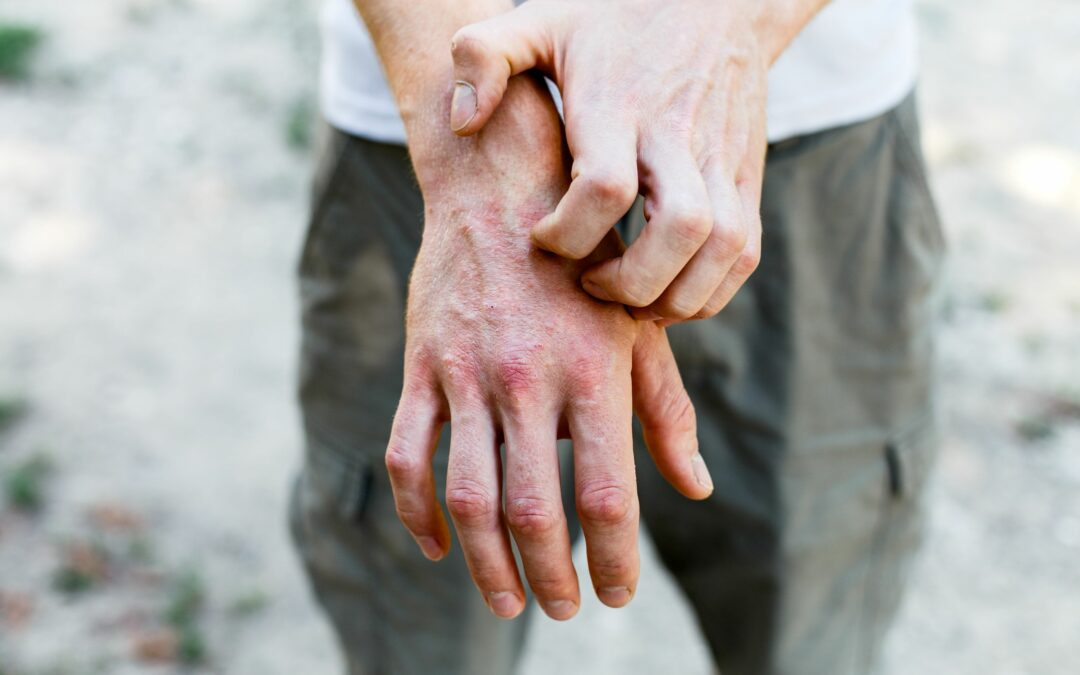 LAST WORD: Treatments for Atopic Dermatitis